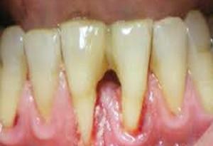 Denti e gengive: i danni del fumo