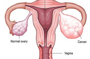 cancro ovaie