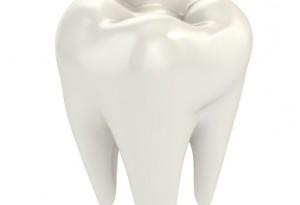 dente bianco