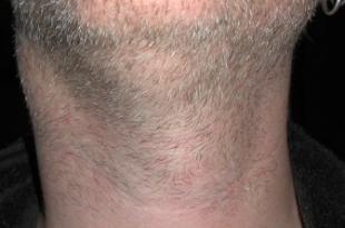 tiroide ingrossata