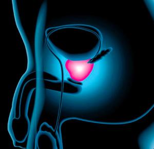 come controllare la propria ghiandola prostatica