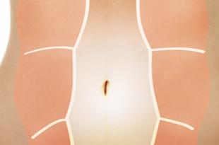 diastasi