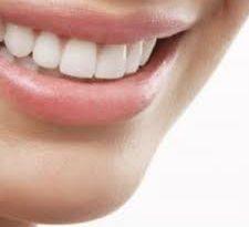 denti smaglianti