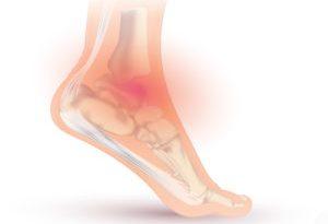 caviglia gonfia