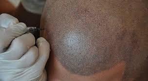 Che cos'è la tricopigmentazione?