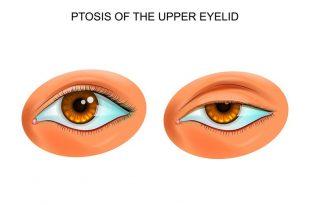 ptosi degli occhi