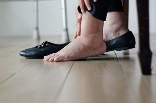 Caviglie gonfie: attenzione alle scarpe