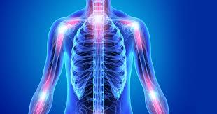 Come riconoscere l'artrosi