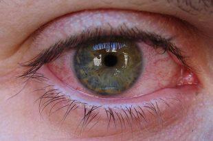 Si possono usare le lenti a contatto con l'allergia?