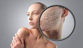 pelle secca e desquamata